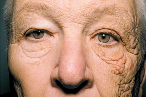 Efectos del sol en la piel